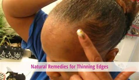 best products to use for thinning edges african american treatment for bald edges hair 4c hair hergivenhair bald