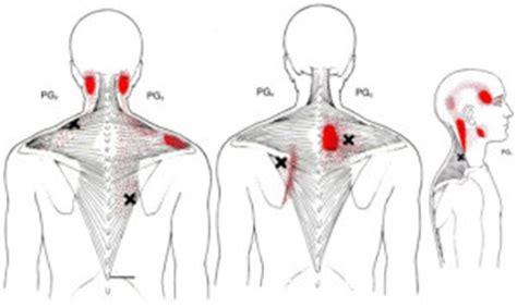 cadenas musculares miembro superior pdf puntos gatillos en el m 250 sculo trapecio 171 rehabilita t