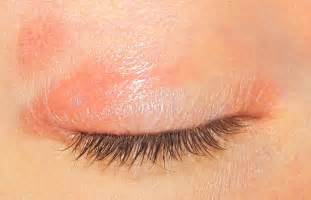 itchy eyelids home remedy itchy eyelids causes related keywords suggestions
