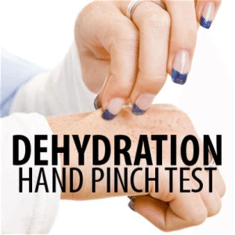 dehydration test dr oz dehydration pinch test water health quiz daily