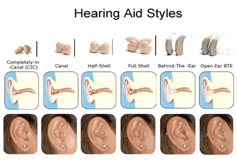 hearing aid types a note about hearing technology watts up with that
