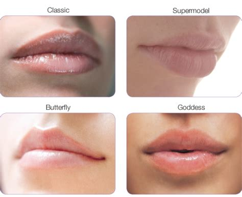 the best lip fillers with dr dan dhunna london amp midlands