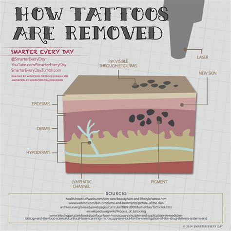 does tattoo laser removal work how does laser removal work