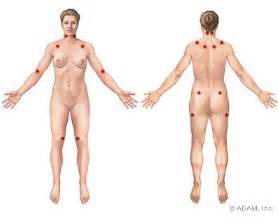 Body pain plus localized pain in 11 of these 18 specific points