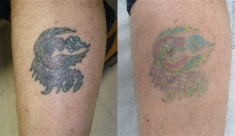 rejuvi tattoo removal review rejuvi removal thairapy exeter