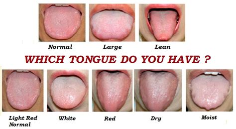 healthy tongue color pictures to pin on pinsdaddy