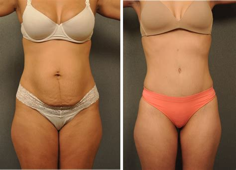 when can you have a tummy tuck after c section tummy tuck before and after what can go wrong health 2