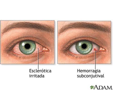 sangre en el ojo qu 233 hacer causas y remedios ella hoy enrojecimiento de los ojos medlineplus enciclopedia m 233 dica