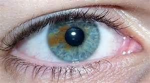 iris color change change eye color surgery readpure