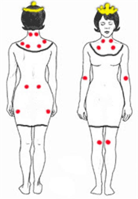 fibromyalgia tender spots diagram pressure spots but in these areas can point to