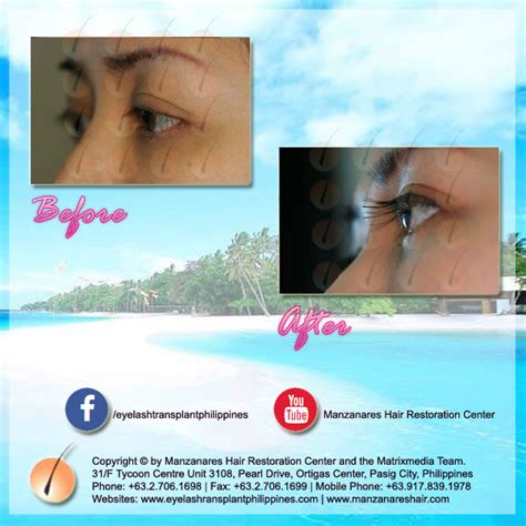 hair transplant in the philppines cost before and after eyelash hair transplant manila