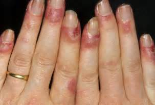 Swollen Nail Bed Lupus In Pictures Rashes Where Rashes Happen Which