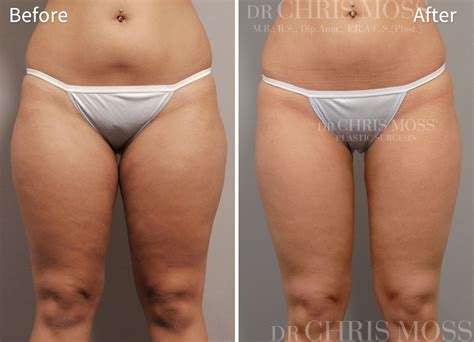 thick extensive pubic hair liposuction melbourne tummy tuck