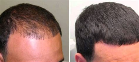 rogaine hair loss pattern how does minoxidil work his hair clinic