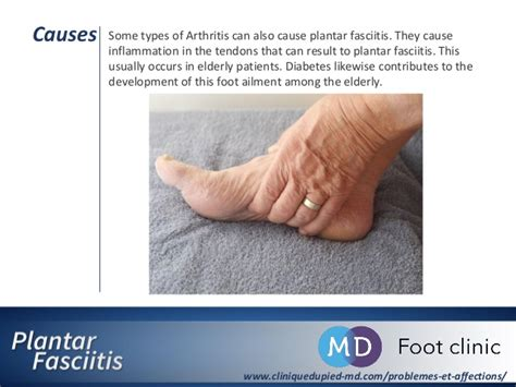 plantar fasciitis origin causes examination treatment