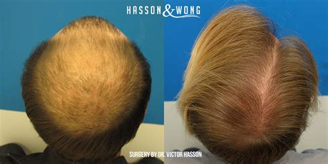 does fue hair transplant work does fue hair transplant work what is fue cost results