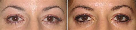tattoo eyeliner denver permanent makeup denver centennial dtc laser aesthetics