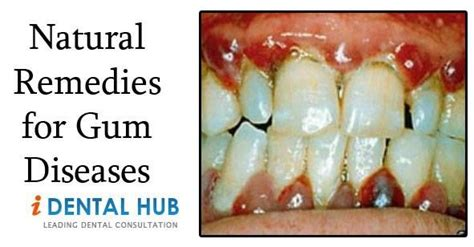 remedies for gum diseases dental care
