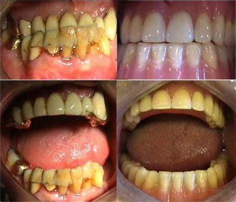 tipi di protesi dentarie mobili protesi dentaria fissa e mobile
