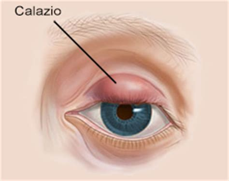 calazio e alimentazione sintomi diagnosi e cure per il calazio oculista carlo