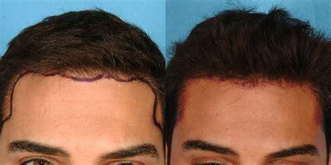 hair restoration hair transplant neograft orlando hair restoration hair transplant neograft orlando