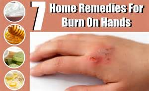home remedy for burns 7 effective home remedies for burns on