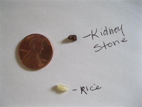 Do A by Kidney In Toilet Www Pixshark Images