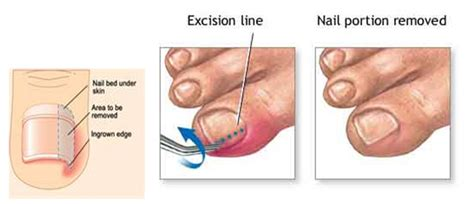ingrown toenail pictures remedies surgery and treatment