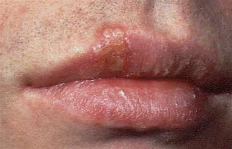 Out For Herpes by Herpes Blister Buttocks Lysine And Herpes Outbreak