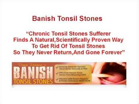 banish tonsil stones how to get rid of tonsil stones
