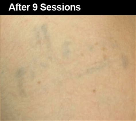 tattoo removal light laser tattoo removal before and after pictures wifh