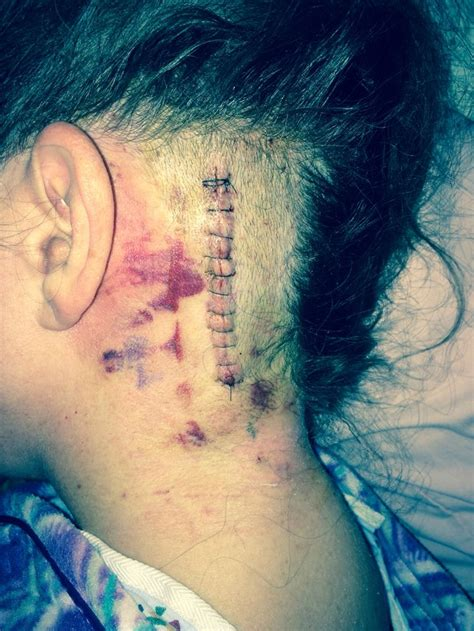 tattoo nerve pain 128 best images about trigeminal neuralgia posters on