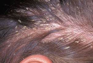 best dandruff shoo for colored hair your hair and scalp can say a lot about your health