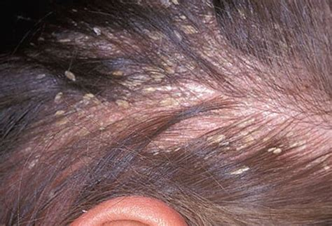 Can A Hair Dryer Cause Dandruff hair scalp and nail conditions types causes and treatments