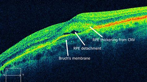 3 Retina Second optometry today view all news