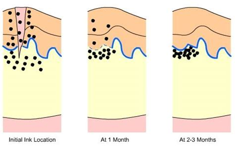 stages of tattoo healing ink disbursal months