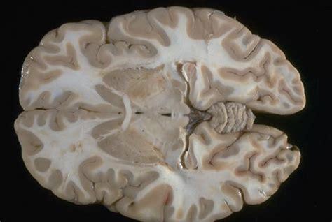 brain transverse section neuroanatomy