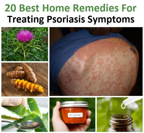 otvtips 20 best home remedies for treating psoriasis