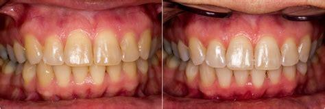 teeth whitening columbus dublin ohio dublin metro dental