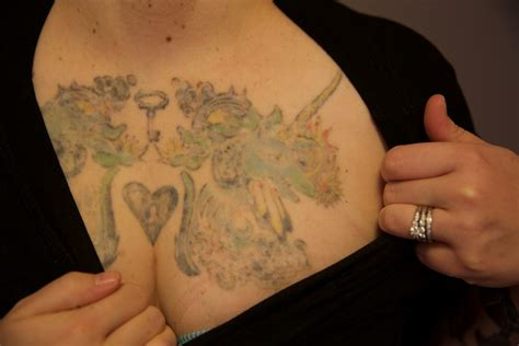 chest tattoo removal before after laser removal before and after the untattoo