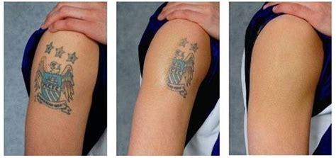 rimozione tatuaggi chirurgia estetica