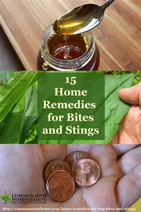 15 home remedies for bug bites and stings total survival