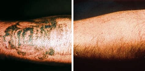 tattoo removal huddersfield home removal methods