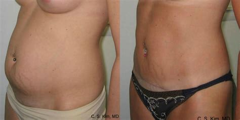 free tummy tuck after c section lipo tummy tuck surgery westchester