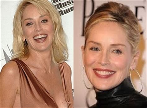 hairstyles that cover face lift scars sharon stone plastic surgery before and after photos botox