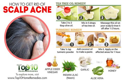 how to care for a itchy scalp with kinky twist how to get rid of scalp acne top 10 home remedies