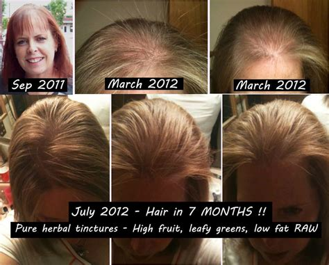 8 months hair growth after chemotherapy pictures hair 8 months post chemo diet cigarnews