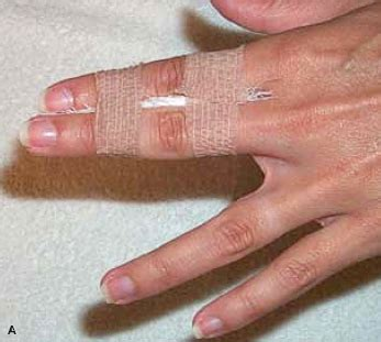 how to finger phalangeal hand fracture musculoskeletal medicine for