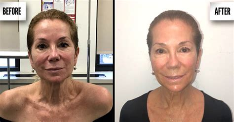 kathie lee gifford aerolase what is ultherapy cost and review of the mini lift