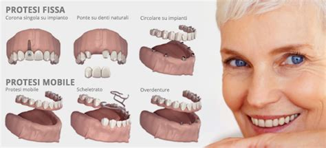 tipi di protesi dentarie mobili protesi dentali studio dentistico banzi